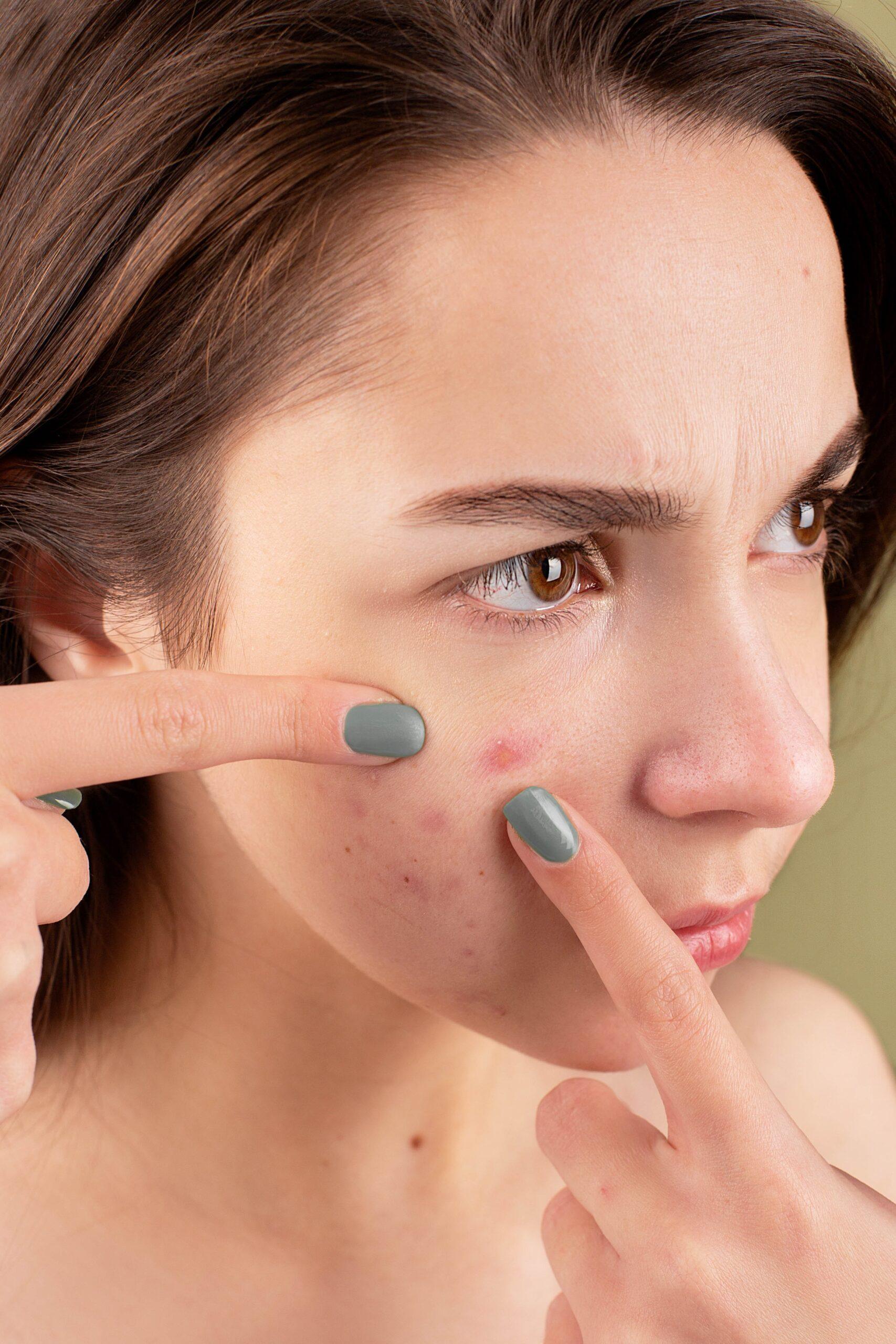 Tratamientos para la piel pozuelo